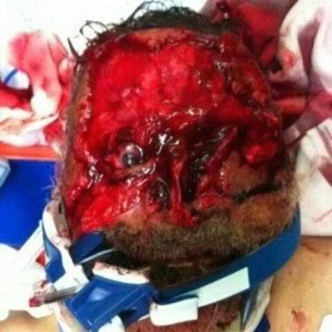 face was eaten
