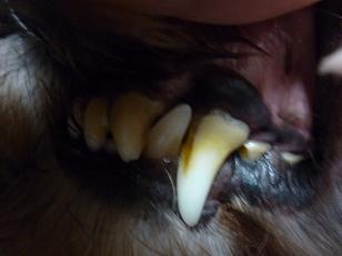 2012 ブログ用 781歯石