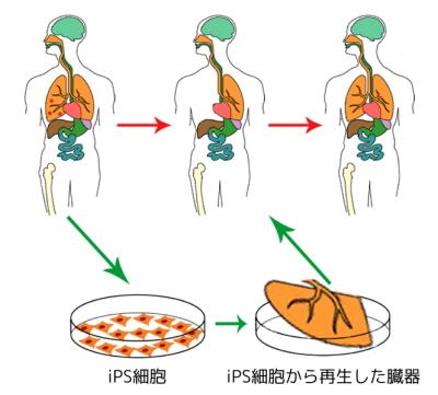 664px-Ips_cells_ja.jpg