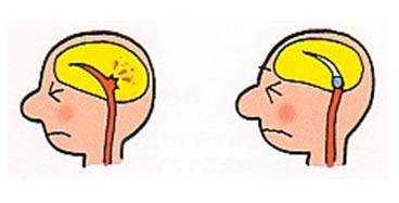 血圧(頭のスケッチ)