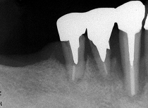 右下の歯周病の状態