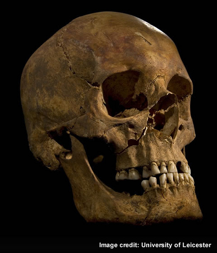 The skull showing the wound to the right cheek