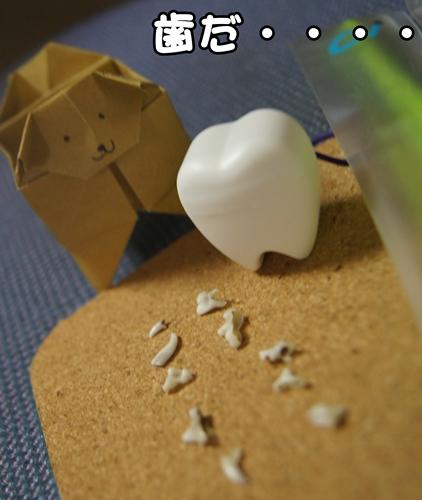 大きな歯~~