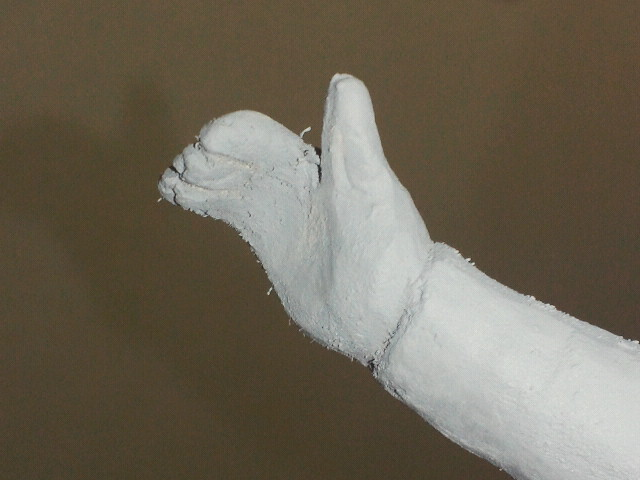 デールの右手