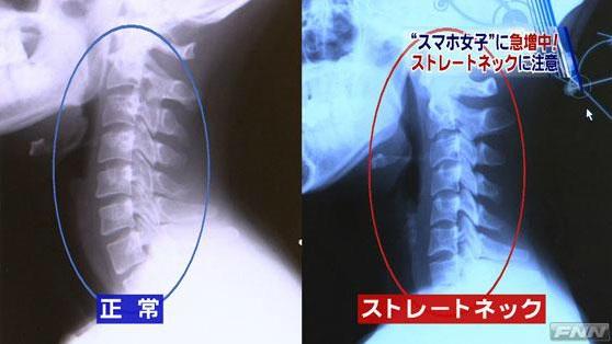 120626_neck.jpg