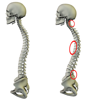 spine_compression.jpg