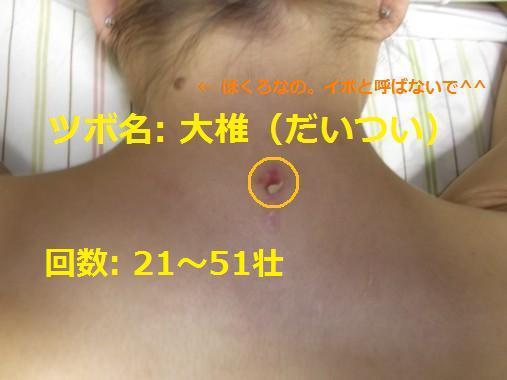 20120805_07大椎