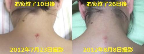 大椎のお灸跡の経過